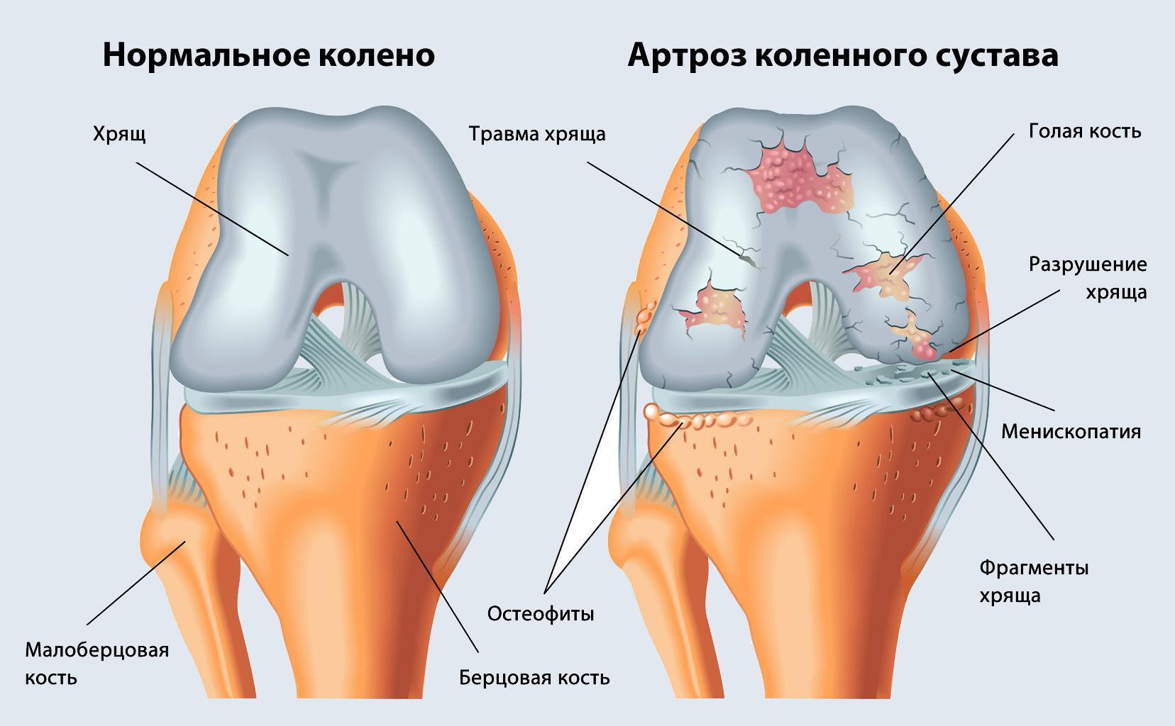 Артроз: остеоартроз, остеоартрит, артрозоартрит
